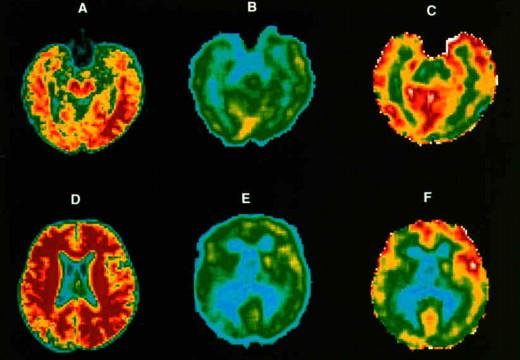 Física Médica II: Tomografía por Emisión de Positrones